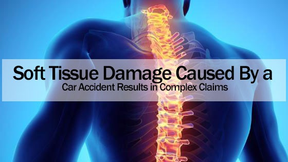 Soft Tissue Damage Caused By a Car Accident