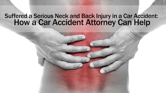 Suffered a Serious Neck and Back Injury in a Car Accident: How a Car Accident Attorney Can Help